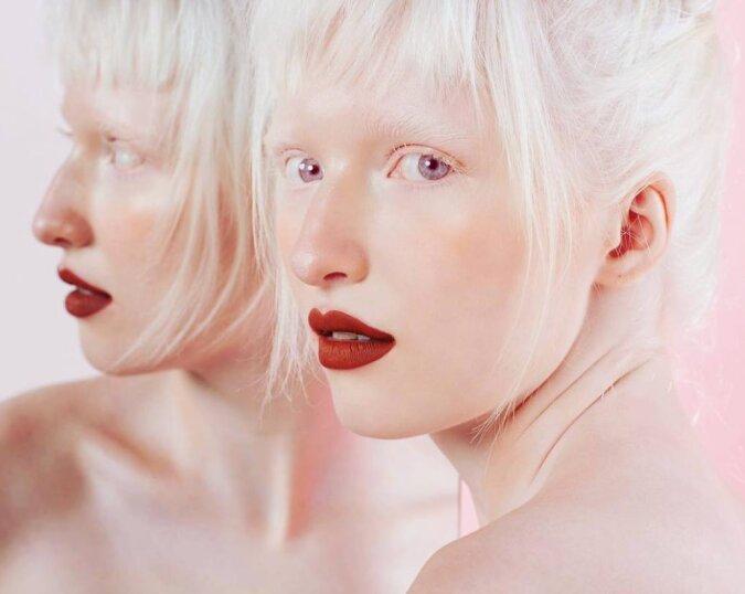 Die junge Frau, die Albinismus hat, wurde wegen ihres seltsamen Aussehens nicht akzeptiert. Aber jetzt eroberte sie die Podiumsplätze der Welt
