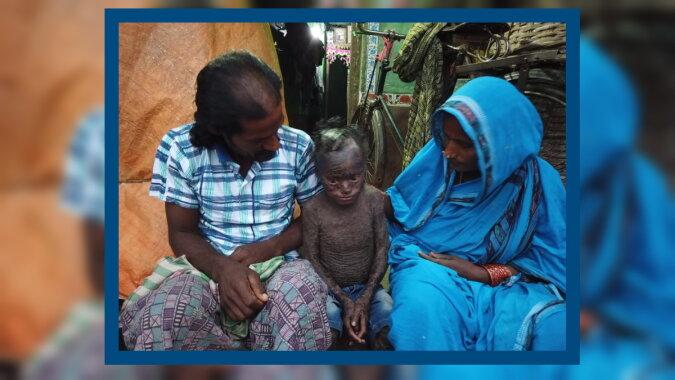Der Junge namens Jagannath. Quelle: swns.com