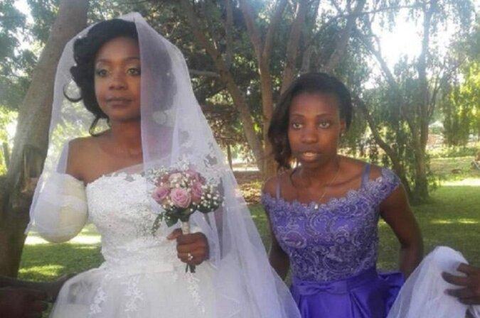 Obwohl das Krokodil ihr die Hand raubte, gab die junge Frau ihre Hochzeit nicht auf