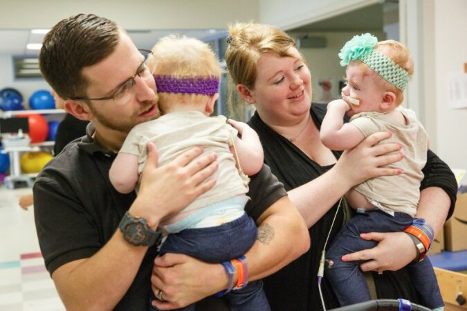 """""""Ein neues Leben geben"""": Ärzte haben es geschafft, die siamesischen Zwillinge zu teilen"""