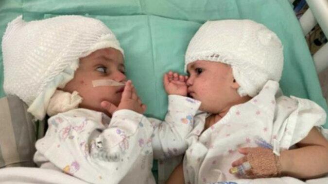 Siamesische Zwillinge. Quelle: korrespondent.com